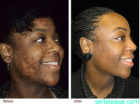 PERMANENT SKIN LIGHTENING PRODUCTS